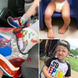 a toddler with one foot that turns in so he wears SMO braces to straighten it